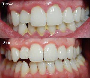 Trước và sau khi cạo vôi