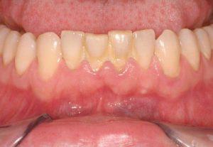 Vôi răng hàm dưới