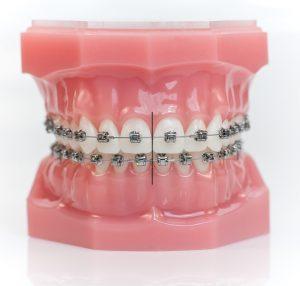 Mẫu tư vấn niểng răng bằng mắc cài kim loại