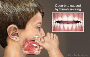 Tật xấu dẫn đến lệch lạc răng