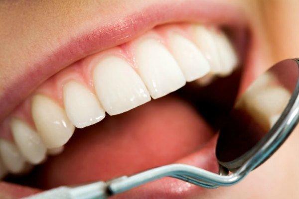 Hàm răng trắng sáng, chắc khỏe là niềm mơ ước của nhiều người trong đó có bạn và tôi