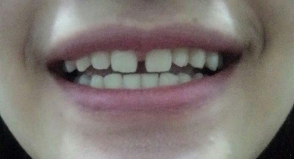 Răng cửa bị thưa điều trị như thế nào?
