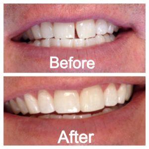 Trám răng thẩm mỹ thường được lựa chọn nếu kẽ hở nhỏ và yêu cầu thẩm mỹ không quá cao