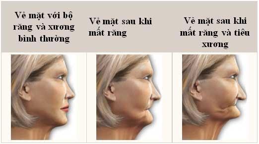 Hậu quả tiêu xương khi mất nhiều răng