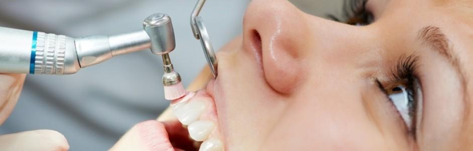 đánh bóng răng sau khi cạo vôi