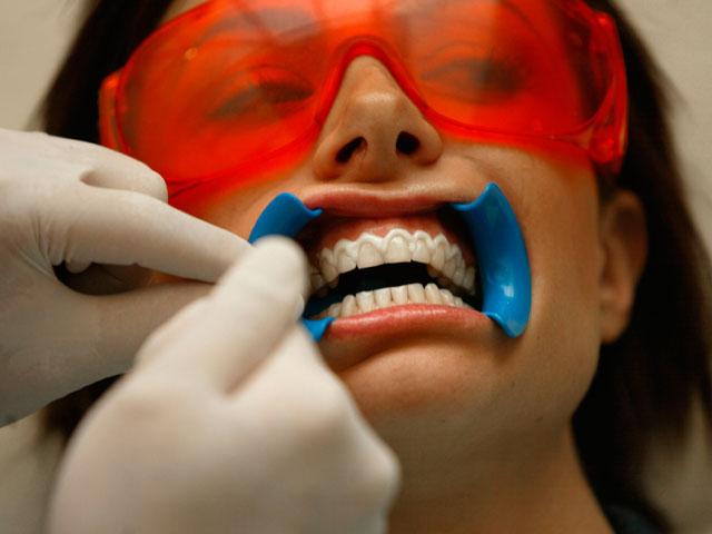 Việc tẩy trắng răng đòi hỏi kỹ thuật bài bản và các dụng cụ hỗ trợ phù hợp