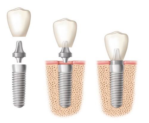 Cấu tạo trụ implant, phần nối abutment và mão sứ