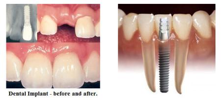 Trồng Răng Bằng Phương Pháp Implant