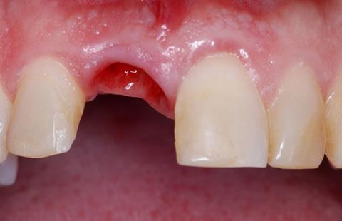 Tư Vấn Sau Nhổ Răng
