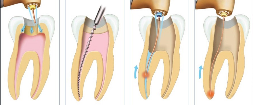 Quy trình điều trị tuỷ răng