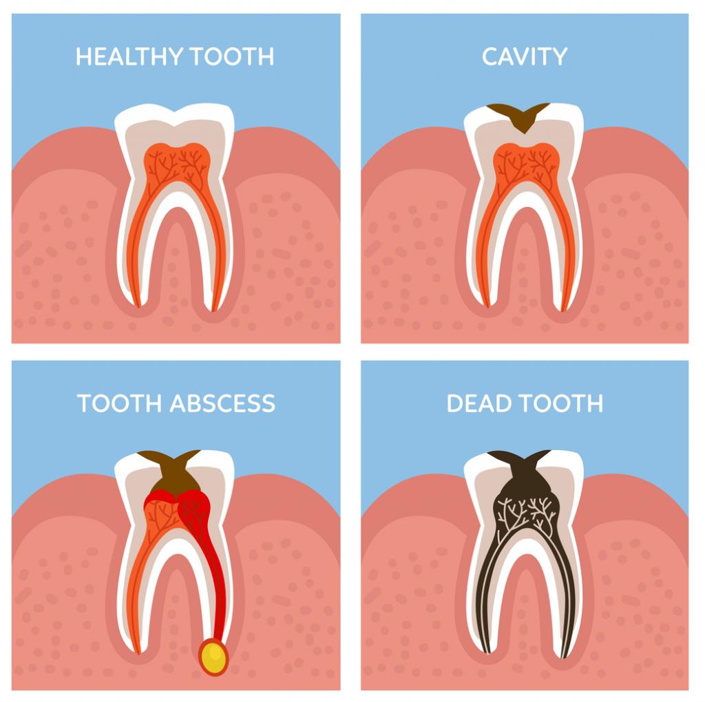 Chữa tuỷ răng