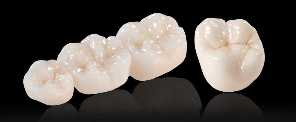 Răng sứ nguyên khối