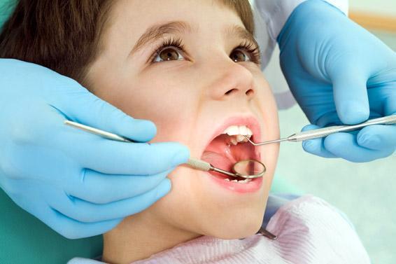 Trám răng sữa cho trẻ em