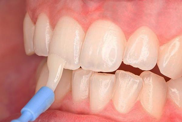 Bôi vecni fluoride phòng ngừa sâu răng ở người lớn