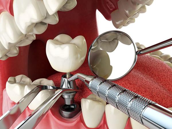 Mô phỏng quá trình trồng răng Implant.