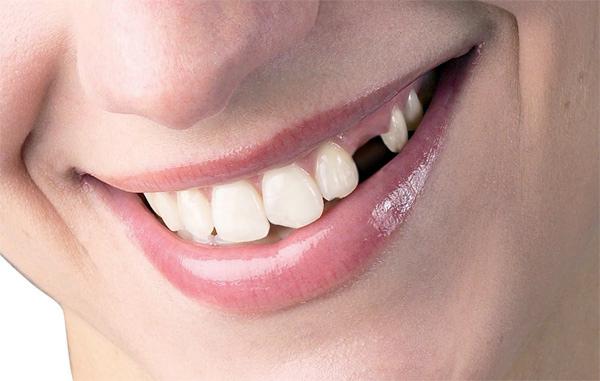 Nhổ răng vĩnh viễn tại Nha Khoa LINH XUÂN