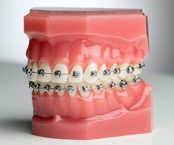 Niềng răng mắc cài kim loại tại Nha Khoa LINH XUÂN