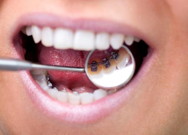 Niềng răng mắc cài mặt trong lưỡi tại Thủ Đức
