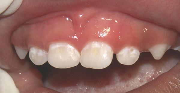 Sang thương đốm trắng - dấu hiệu sớm của sâu răng cần áp dụng bôi vecni fluoride phòng ngừa