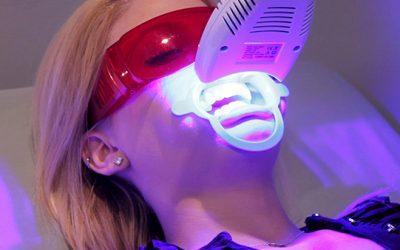 Tẩy trắng răng công nghệ Laser tại Nha Khoa LINH XUÂN