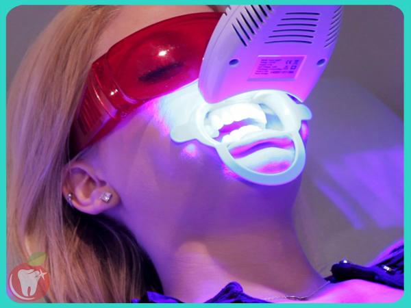 Tẩy trắng răng laser Nha Khoa LINH XUÂN