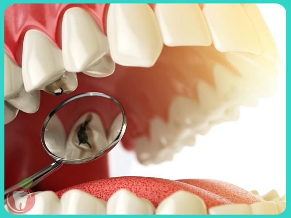 Trám răng sâu Nha Khoa LINH XUÂN