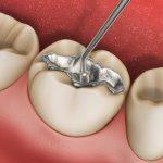 Trám răng thẩm mỹ