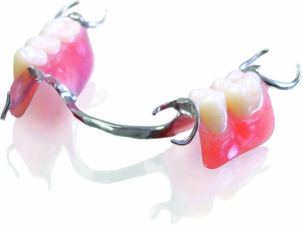 Trồng răng giả hàm tháo lắp