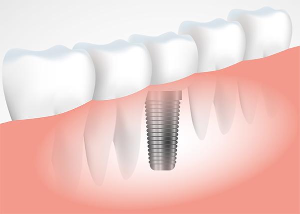 Có nên trồng răng Implant không?