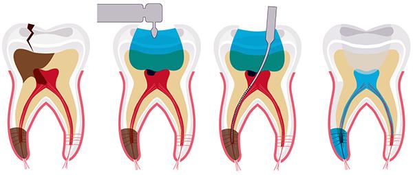 Điều trị tủy răng có đau không?