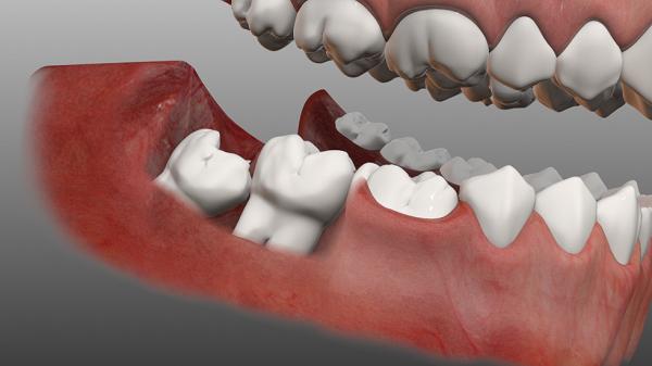 Nhổ răng không có đau không