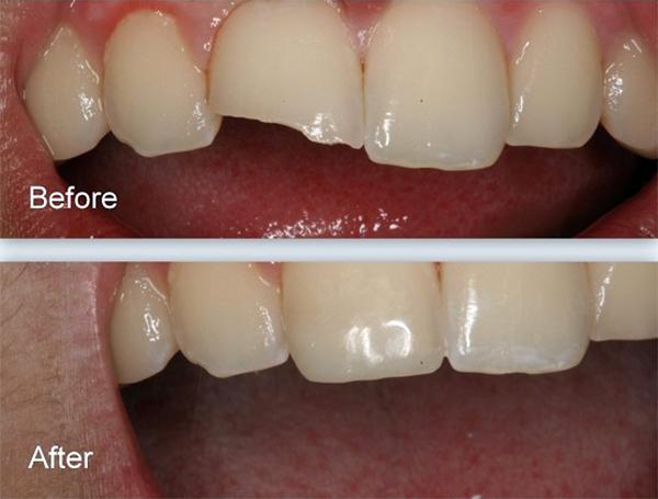 Răng bị mẻ có trám được không