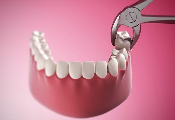 Thời điểm nào nên nhổ răng khôn