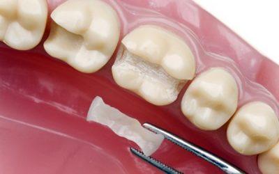 Trám răng Inlay Onlay