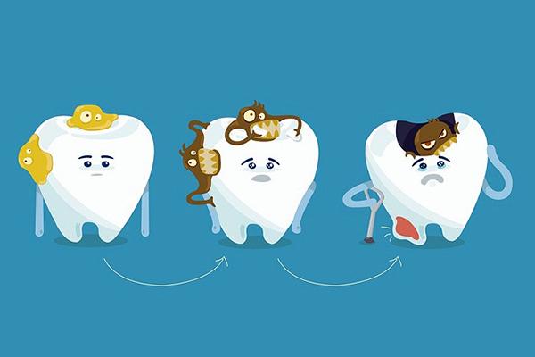 Các mức độ của bệnh sâu răng từ nhẹ đến nặng