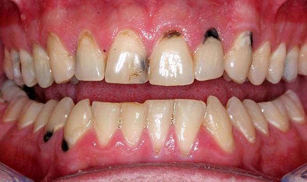 Sâu răng hình thành ở chân răng