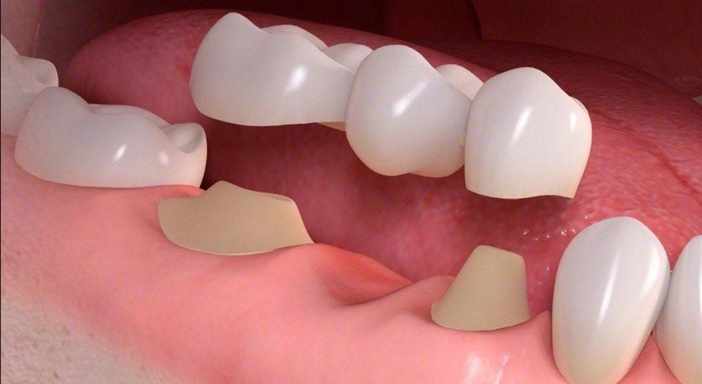 Trồng răng bắc cầu sứ có tốt không