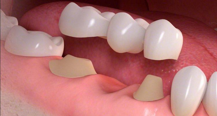 Trồng răng bắc cầu sứ