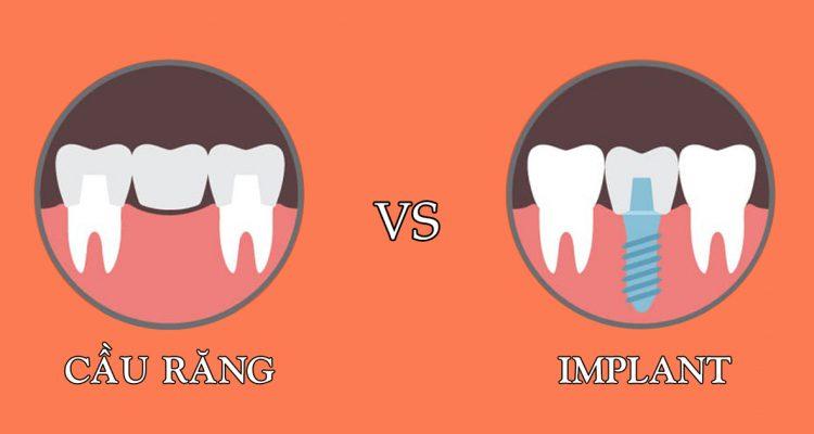 Cầu răng vs Implant