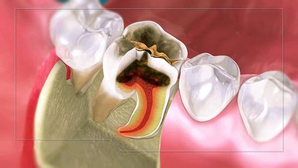Sâu răng có gây hại gì đến tuỷ răng không?