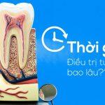Điều trị tuỷ răng mất bao lâu