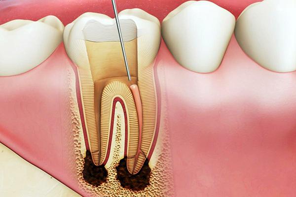 Nhổ răng chết tủy có đau không?