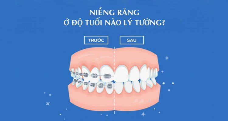 Nên niềng răng ở độ tuổi nào