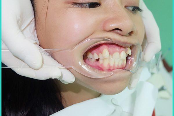 Hoàng Liên - Niềng răng Nha Khoa LINH XUÂN