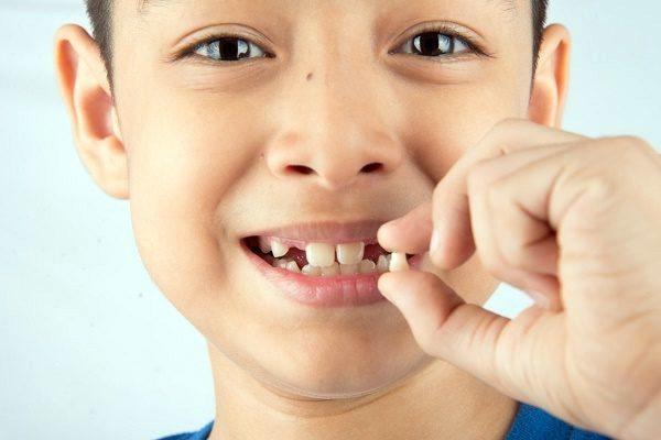 Thay răng sữa trẻ em