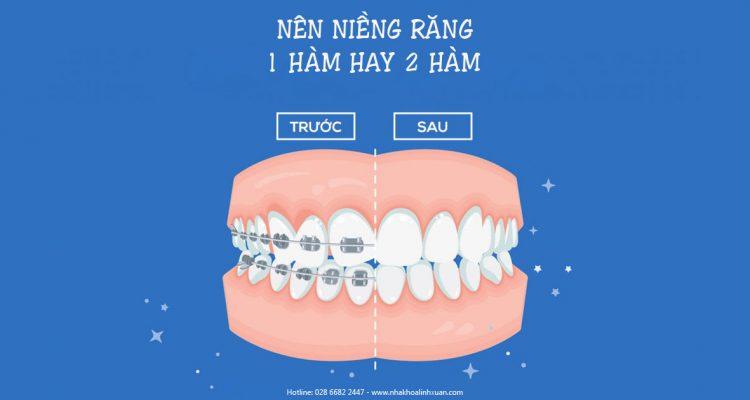 Nên niềng răng 1 hàm hay 2 hàm