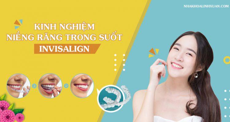 Kinh nghiệm niềng răng trong suốt Invisalign