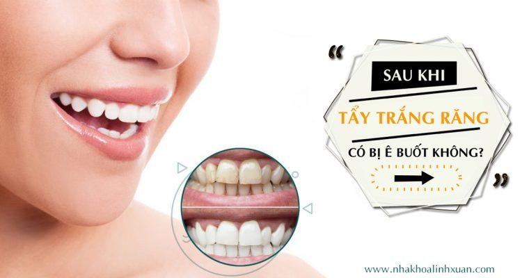 Tẩy trắng răng có bị ê buốt không