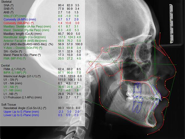 Thông số đo đạc film X-quang