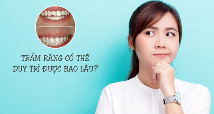 Trám răng duy trì được bao lâu